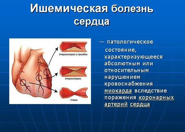 Комплексная терапия ишемической болезни сердца