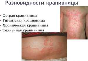 Крапивница, как один из побочных эффектов который может возникнуть от приема Вивитрола