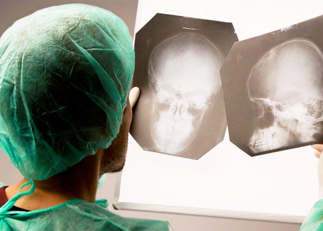 Нарушена функция памяти в результате черепно-мозговой травмы