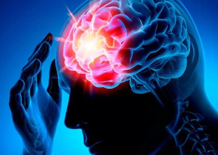 Нарушения функционирования головного мозга