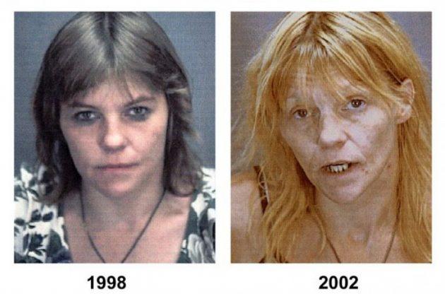 Последствие употребления наркотиков
