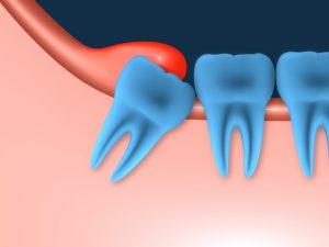 Воспаление в ротовой полости из-за употребления алкоголя после извлечения зуба