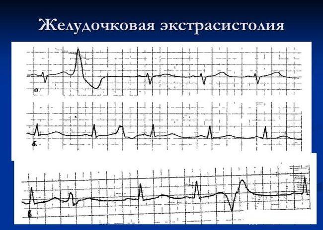 Желудочковая аритмия