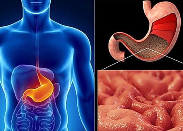 Заболевание органов пищеварительной системы