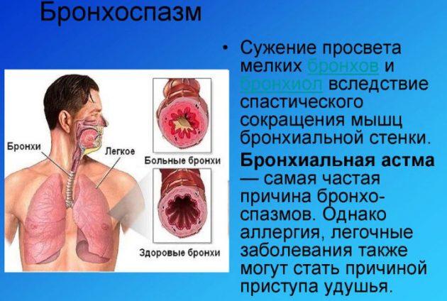 Бронхоспазмы, как побочный эффект препарата, возникают только у пациентов болеющих астмой