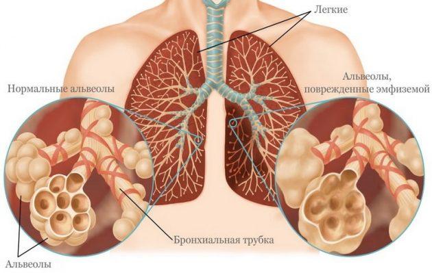 Альвеолы, поврежденные эмфиземой