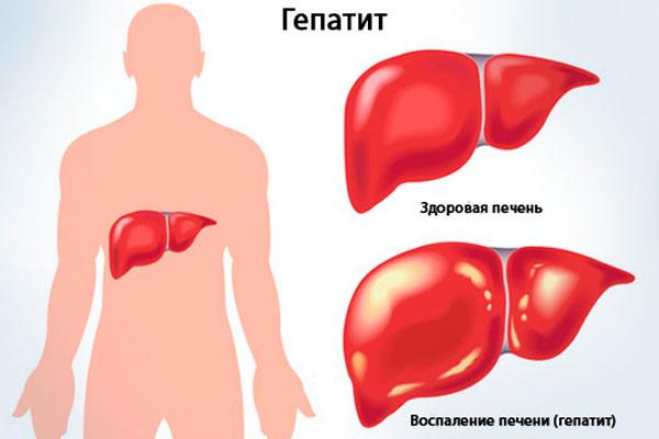 Гепатит, в следствии длительного употребления Белого Китайца