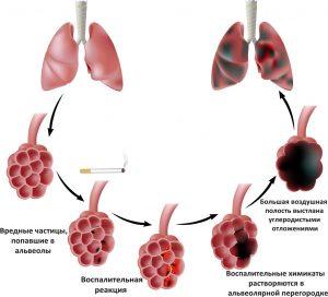 Причины появления эмфиземы легких