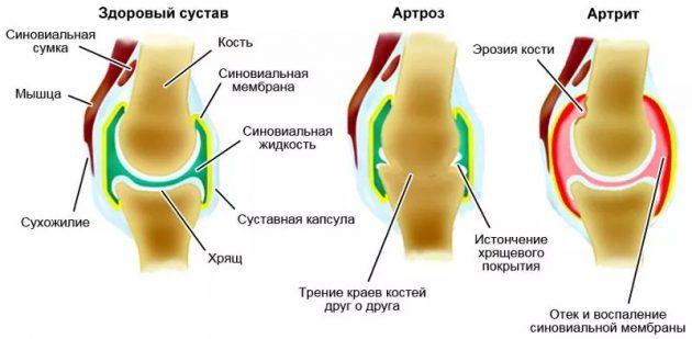 Артрит-артроз