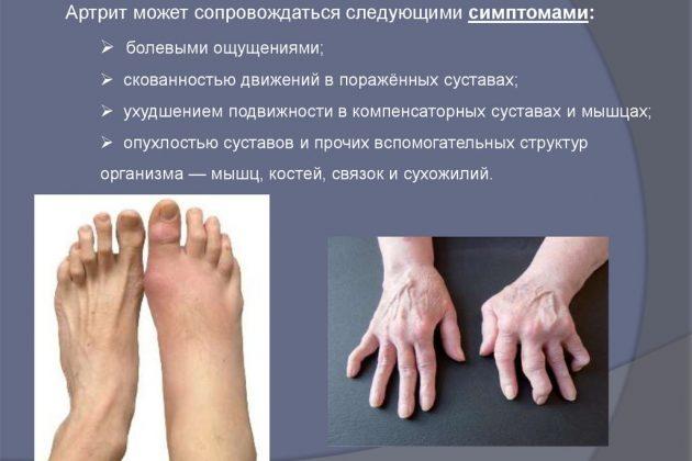 Болевой синдром при артрите