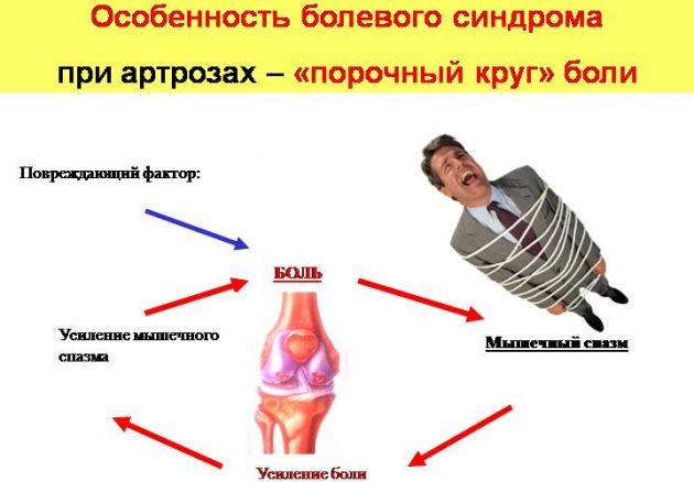 Болевой синдром при артрозе