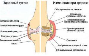 Деформация суставов при артрозе