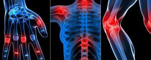 Симптомы заболевания суставов
